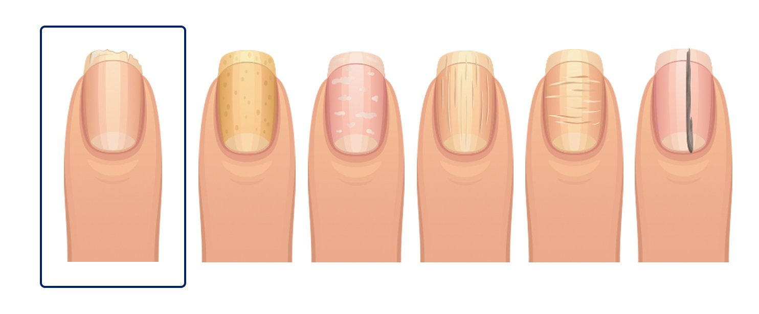 What Your Fingernails Say About Your Health